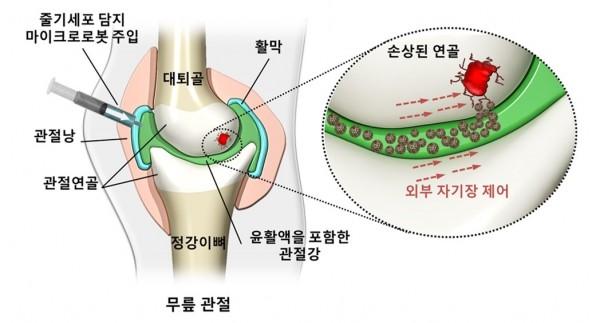 줄기세포가 탑재된 마이크로로봇의 치료과정 모식도. - 마이크로의료로봇센터 제공
